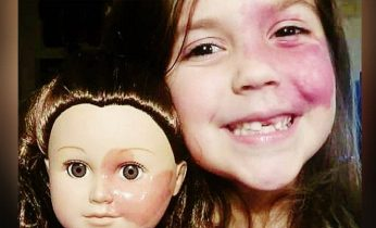 girl with face birthmark matching doll